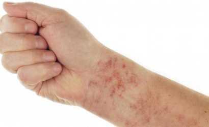 Как выявить и лечить аллергию, вызванную глистами?