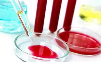 Какие виды анализов крови на паразитов самые эффективные?