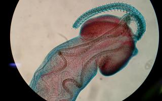 Какие виды паразитов самые опасные для организма человека, способы борьбы в домашних условиях