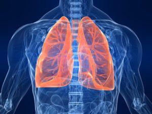 Хламидиоз легких