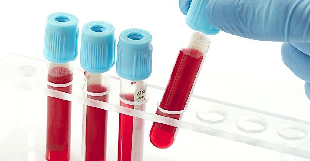 Выполнение анализа крови