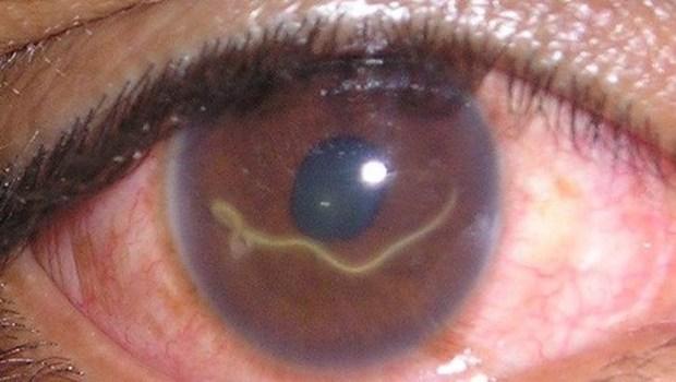 Глисты внутри глазного яблока