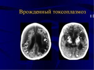 Врожденный токсоплазмоз