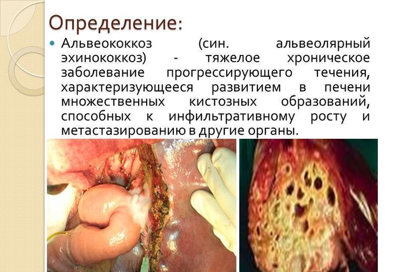 Эхинококкоз печени - причины, симптомы и лечение