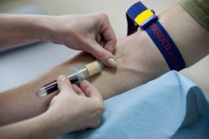 Анализ крови на хламидиоз