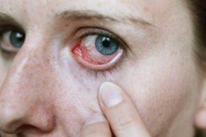 Симптомы проникновения паразита в глаз