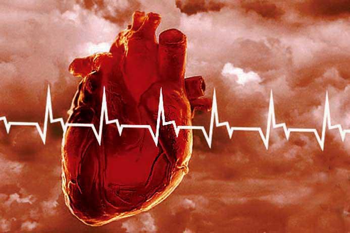 Проблемы в работе сердечно-сосудистой системы