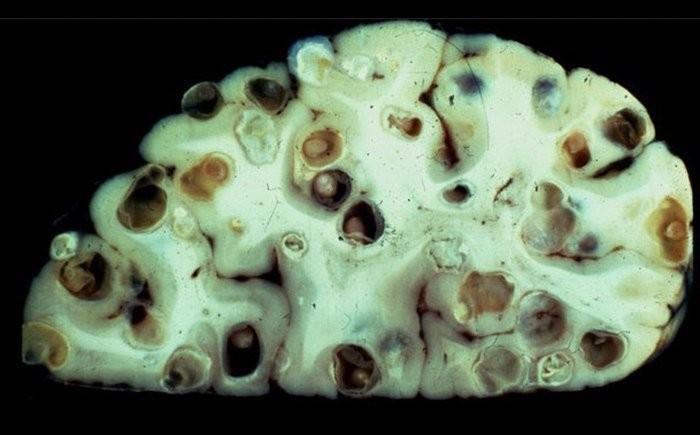 Неглерия Фоулера в тканях головного мозга