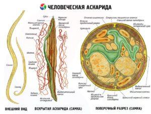 Человеческие аскариды