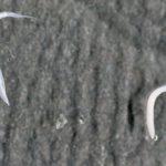 Прыщи от глистов у взрослых отзывы