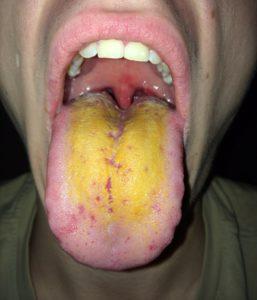 Окрашивание слизистых оболочек в желтый цвет