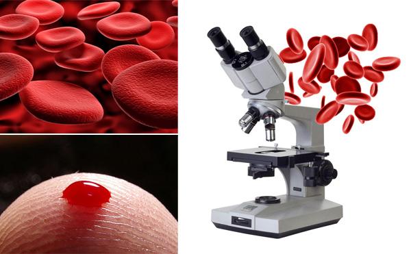 Гемосканирование крови