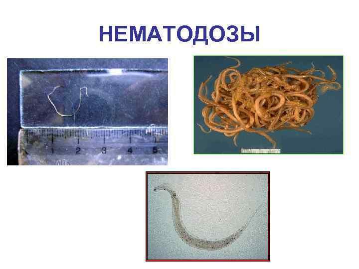 Нематодозы